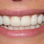 Sample Smile Entry